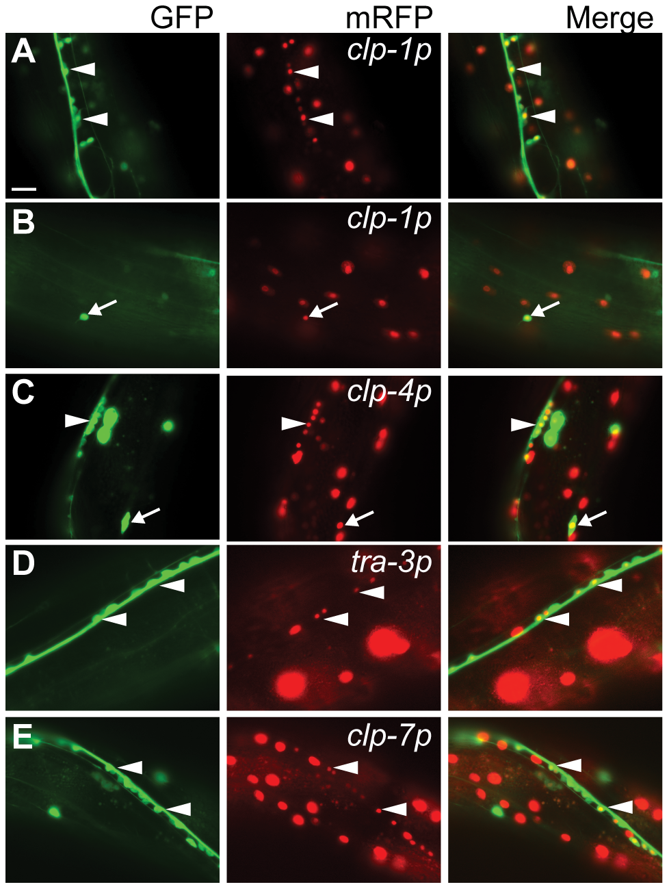 Co-localization of the pan-neuronal <i>unc-119::gfp</i> reporter with calpain <i>nls</i>-<i>mrfp</i> transcriptional reporters.