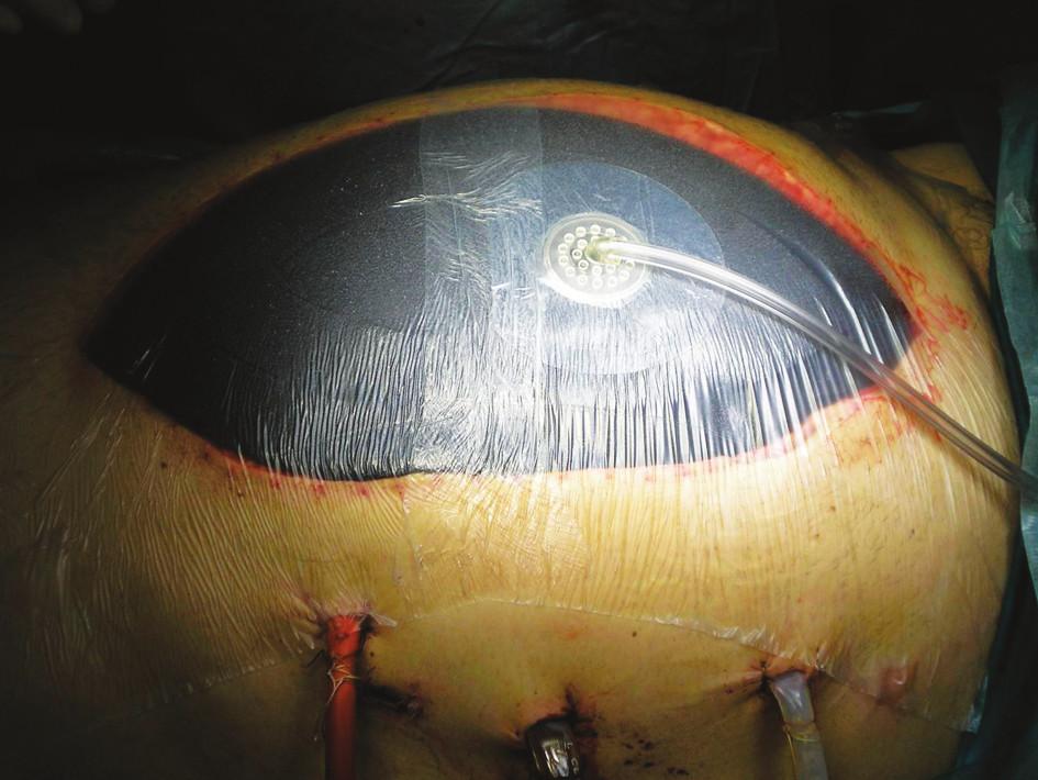 Použitie intraabdominálneho VAC metódou otvoreného brucha Fig. 1. Use of Intraabdominal VAC, open abdominal surgery