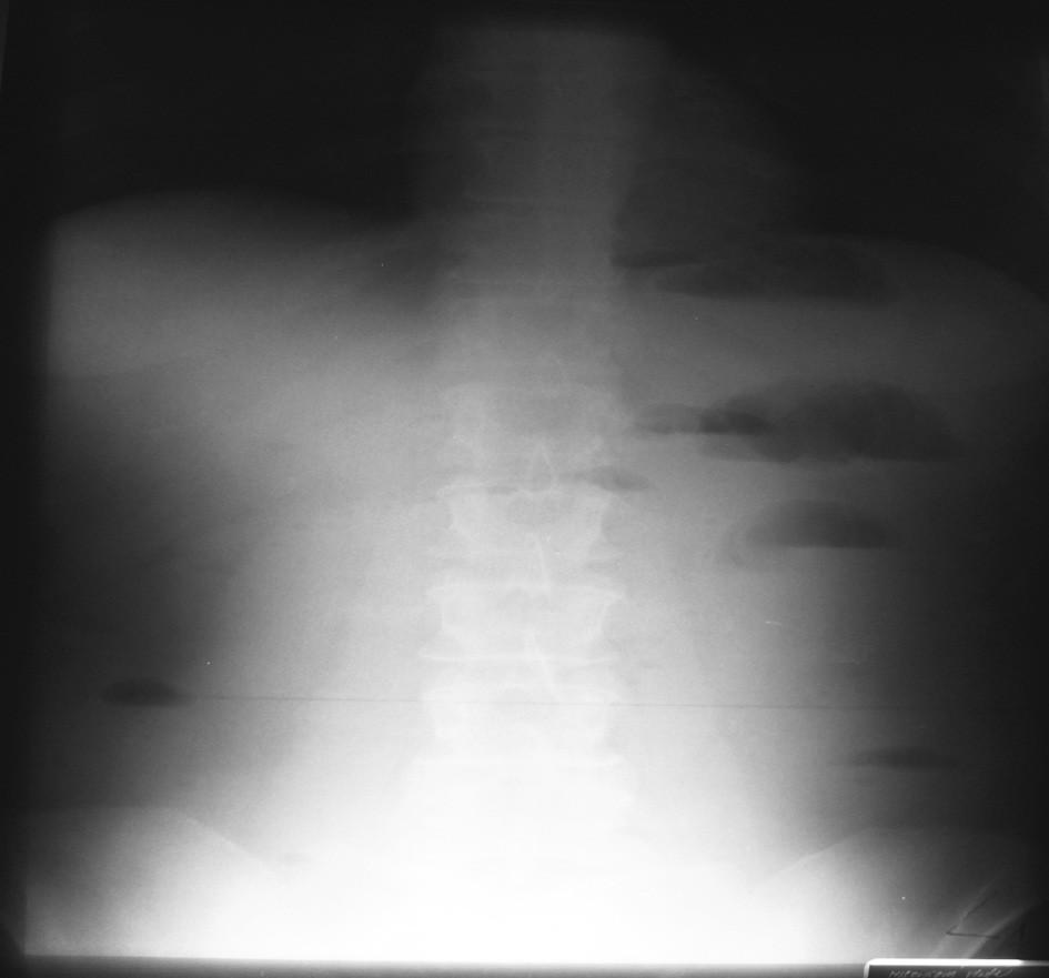 NSB – 18. 4. 2007 = kontrola na 4. deň hospitalizácie Fig. 4. Native abdominal x-ray view – 18-04-2007 = a checkup on the 4th hospitalization day