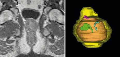Pacient 002–006; Gd-MRI koronární řezy A. týden po léčbě, B. měsíc po léčbě, C. tři měsíce po léčbě, D. šest měsíců po léčbě; (žlutá – prostata, zelená – léze pravého laloku, modrá – léze levého laloku, oranžová – přechodová zóna, růžová – léze středního laloku).