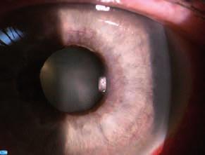 Ektropium pigmentového listu dúhovky (archív II. Očnej kliniky SZU)
