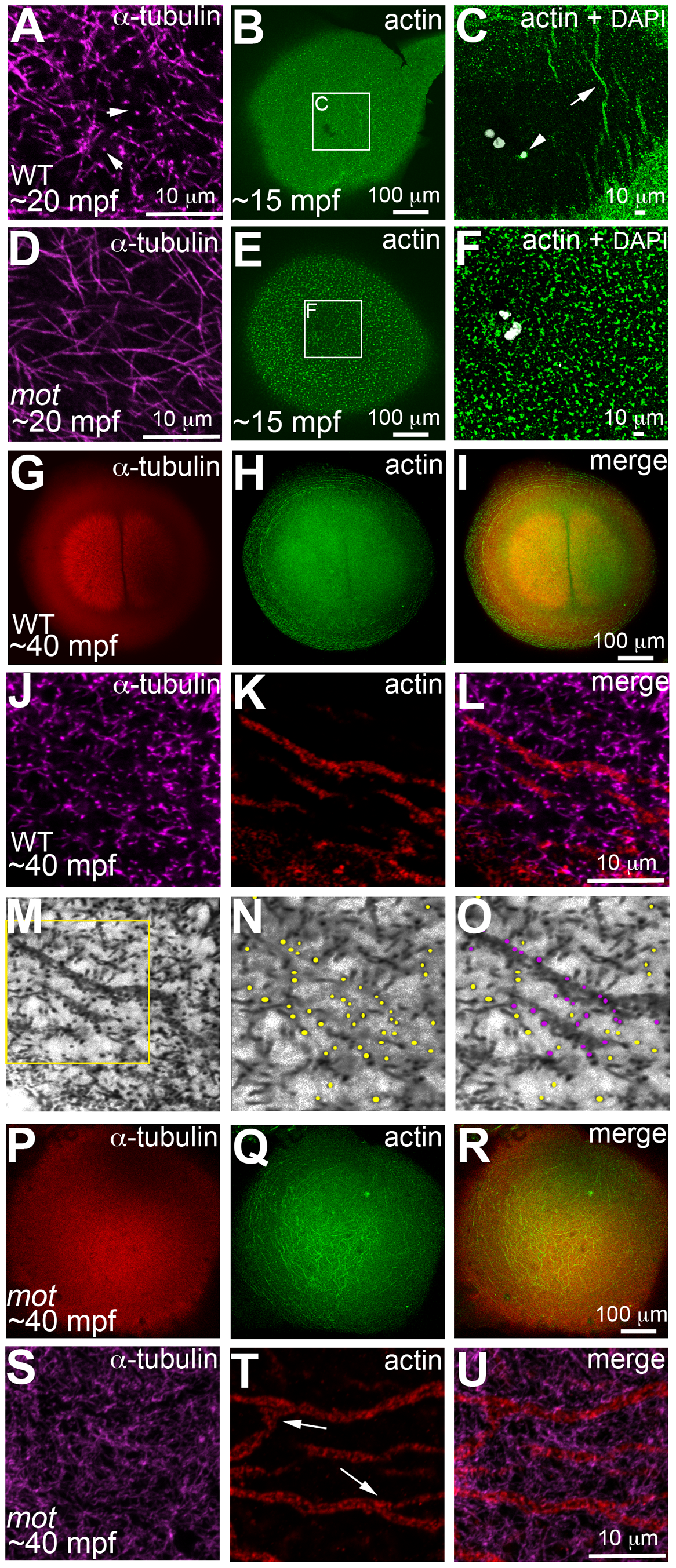 <i>motley/birc5b</i> mutants fail to rearrange cortical actin microfilaments.