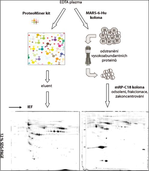 Zjednodušený schematický postup paralelního zpracování vzorků krevní plazmy metodami ProteoMiner (Bio-Rad, USA) a MARS (Multiple Affinity Removal System, Agilent Technologies, USA).