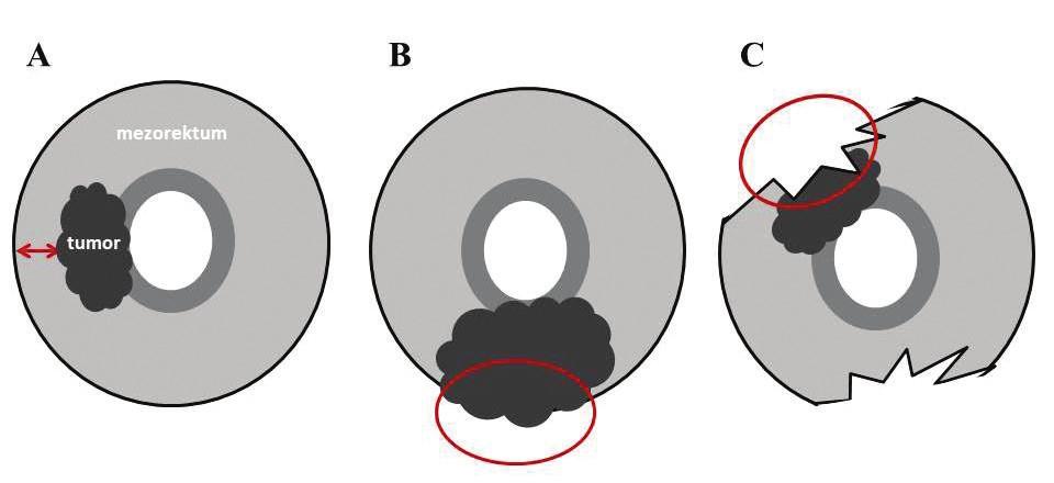 Schematické znázornenie negativity/pozitivity cirkumferenčného resekčného okraja, ktorý je nafarbený tušou a) negatívny CRM, b) Lokálne pokročilý tumor rastúci do CRM c) malý tumor dosahujúci CRM v dôsledku nekompletnej excízie mezorekta (volně podle Nagtegaala [5]).  Fig. 1: A diagram presenting the negativity/positivity of circumferential resection margin marked with black ink a) negative CRM, b) locally advanced tumour growing into CRM, c) small tumour invading CRM as a consequence of incomplete mesorectal excision (adapted from Nagtegaal [5]).