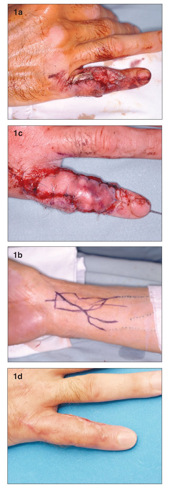 a. Defect with exposure of the proximal interphalangeal joint and loss of extensor tendon b. Design of the venous flap on the distal forearm c. Venous flap 2nd day post-op. Please note the degree of hyperemia is higher on the inflow (distal) part of the flap d. Flap completely healed 1 month post-op
