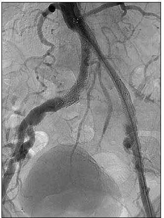 Obr. 7b. Stav po endovaskulární rekanalizaci aorty a pánevních tepen (balónková angioplastika a implantace 3 stentů) s následným vymizením klaudikací.