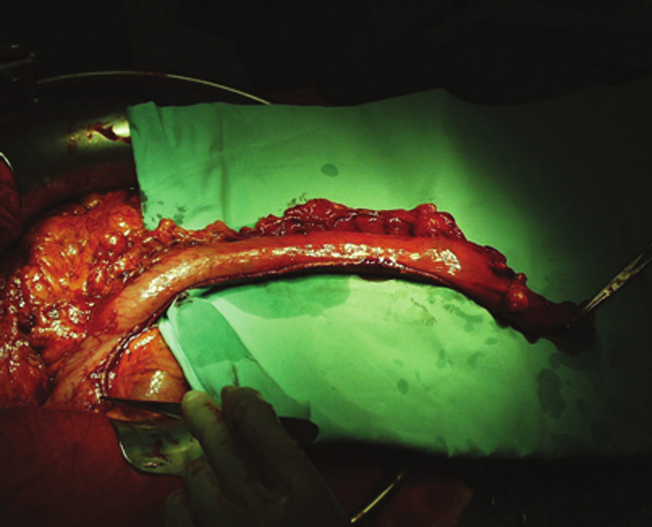Žaludeční tubus
