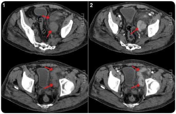 CT břicha u pacienta s plazmocelulární multicentrickou Castlemanovou chorobou. Paket uzlin parailicky vlevo (šipky), nativní vyšetření (1) a po aplikaci kontrastní látky (2), kde je patrné homogenní sycení uzlin kontrastní látkou.