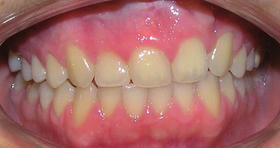 Pacientka s levostranným celkovým rozštěpem po ortodontické léčbě fixním aparátem a dostavbě zubu 12 kompozitním materiálem.Mezera v místě geneze 22 byla uzavřena posunem okolních zubů bez nutnosti protetické rehabilitace. Pacientka je v současné době v retenční fázi ortodontické terapie a nosí snímací aparát na noc.