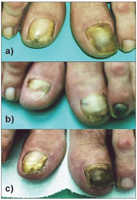 Obr. 1. Nechty palcov nôh pacientky č. 3 s potvrdenou scedospóriovou onychomykózou a) pred liečbou (apríl 2009), b) zlepšenie – pol roka po 4-týždňovej liečbe terbinafinom p. o., na 1. a 2. nechte vľavo hematóm po úraze (december 2009) c) recidíva – 3 mesiace po 12-týždňovej liečbe terbinafinom (máj 2010)