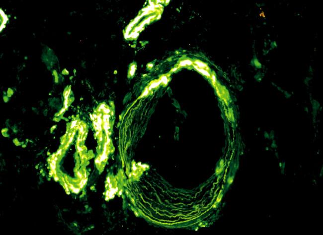 Imunofluorescenční průkaz amyloidu v cévách (protilátka proti lambda lehkým řetězcům, objektiv 20krát)