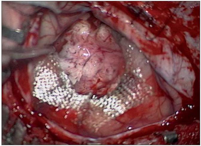 Radikální resekce tumoru peroperačně s Surgicelem na spodině.