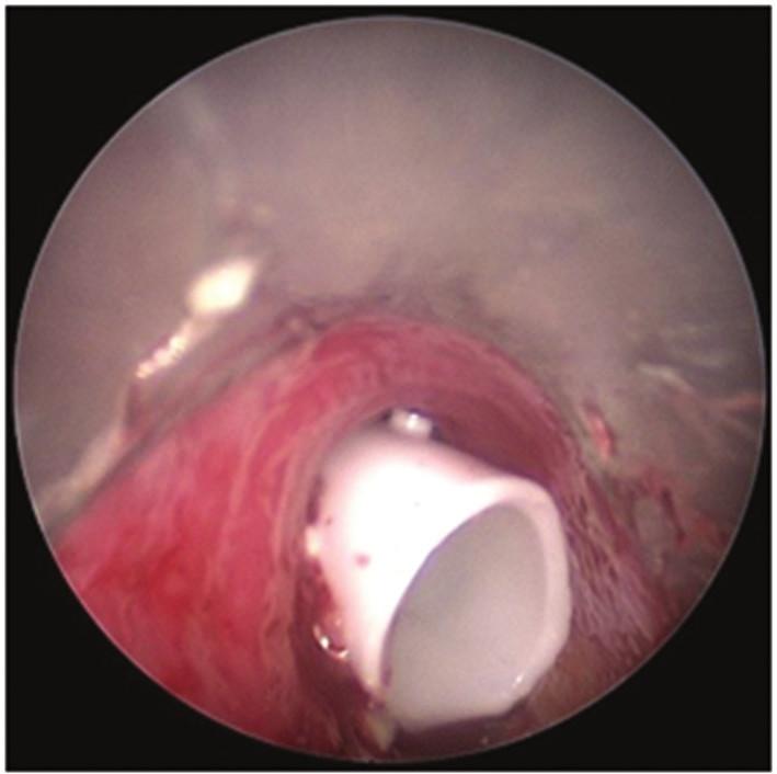 Bronchoskopický pohled: Dumonův stent v trachey Fig. 6: Bronchoscopic view: Dumon stent in the trachea
