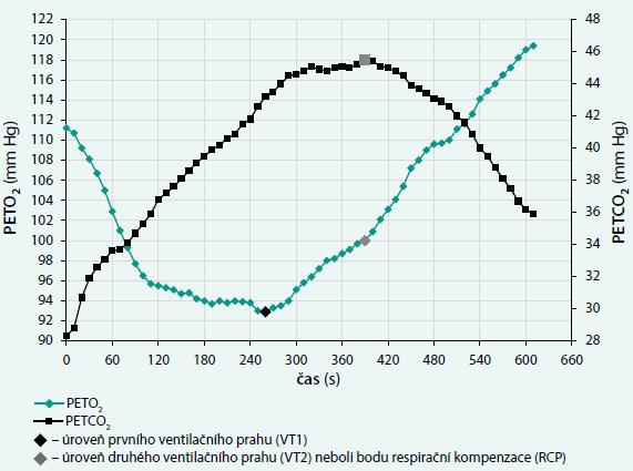 Vzorový průběh křivek parciálního tlaku kyslíku a oxidu uhličitého na konci výdechu (PETO<sub>2</sub> a PETCO<sub>2</sub>)