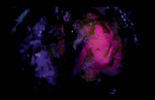 Fotografie zachycující jasně intenzivní fluorescenci nádoru (zóna 1). Fig. 4. Snapshots depicting bright tumour fluorescence (zone 1).