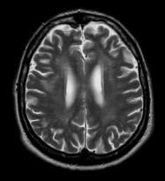 Pacient s DM 1, 51 let. V axiálních FLAIR (a, b) a T2 vážených (c) obrazech jsou patrná ložiska zvýšeného signálu v periventrikulární i hluboké bílé hmotě obou frontálních a parietálních lakoků (b, c), v subkortikální bílé hmotě obou temporálních laloků (a). Mírně rozšířené jsou Virchowovy-Robinovy perivaskulární prostory na konvexitách mozkových hemisfér (c).