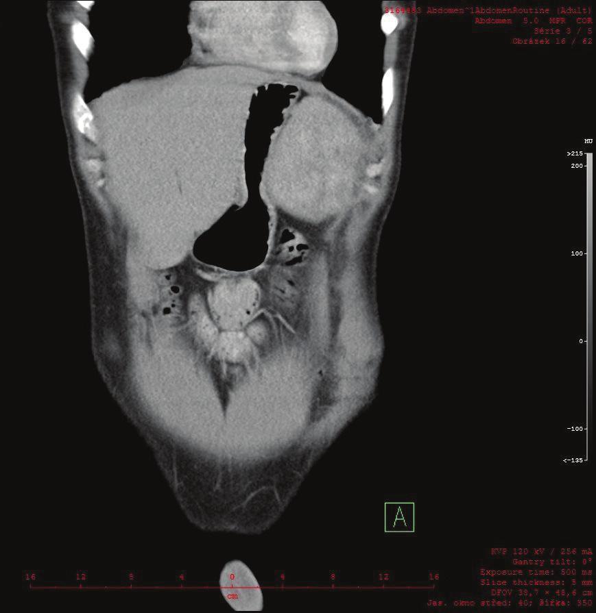 Na CT frontálním řezu je patrný útlak žaludku ložiskem v levém subfreniu Fig. 3: A frontal CT scan showing apparent compression of the stomach by the tumor