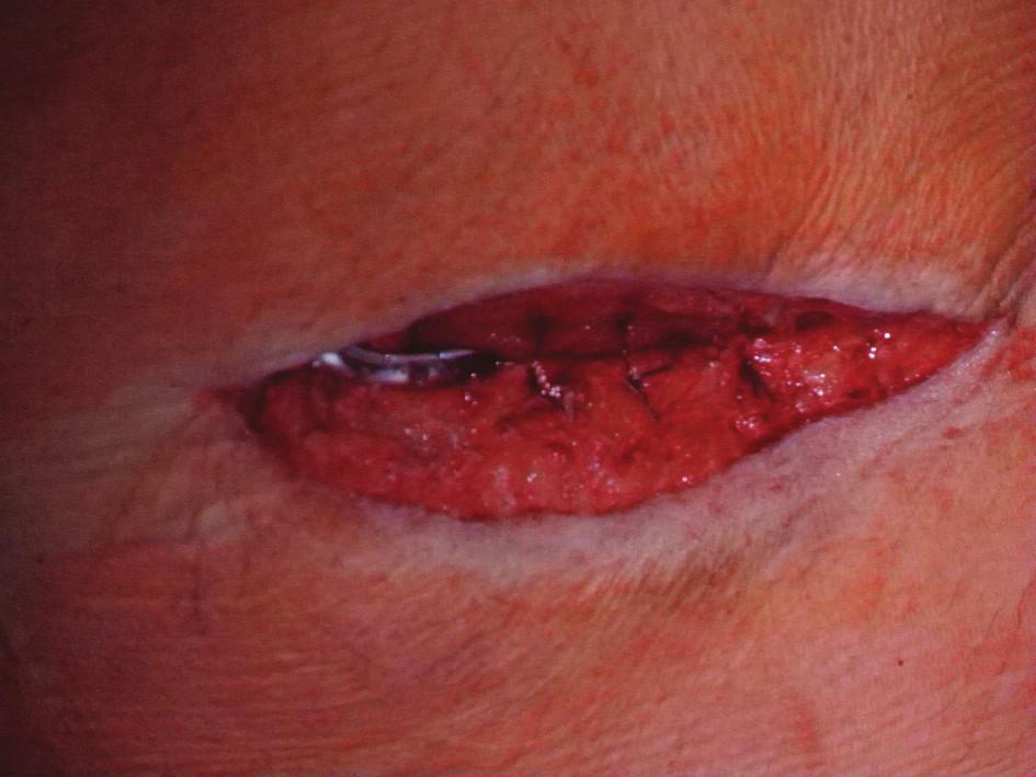 Uzávěr rány s Redonovou drenáží Fig. 3: Closure of the wound using Redon´s drains