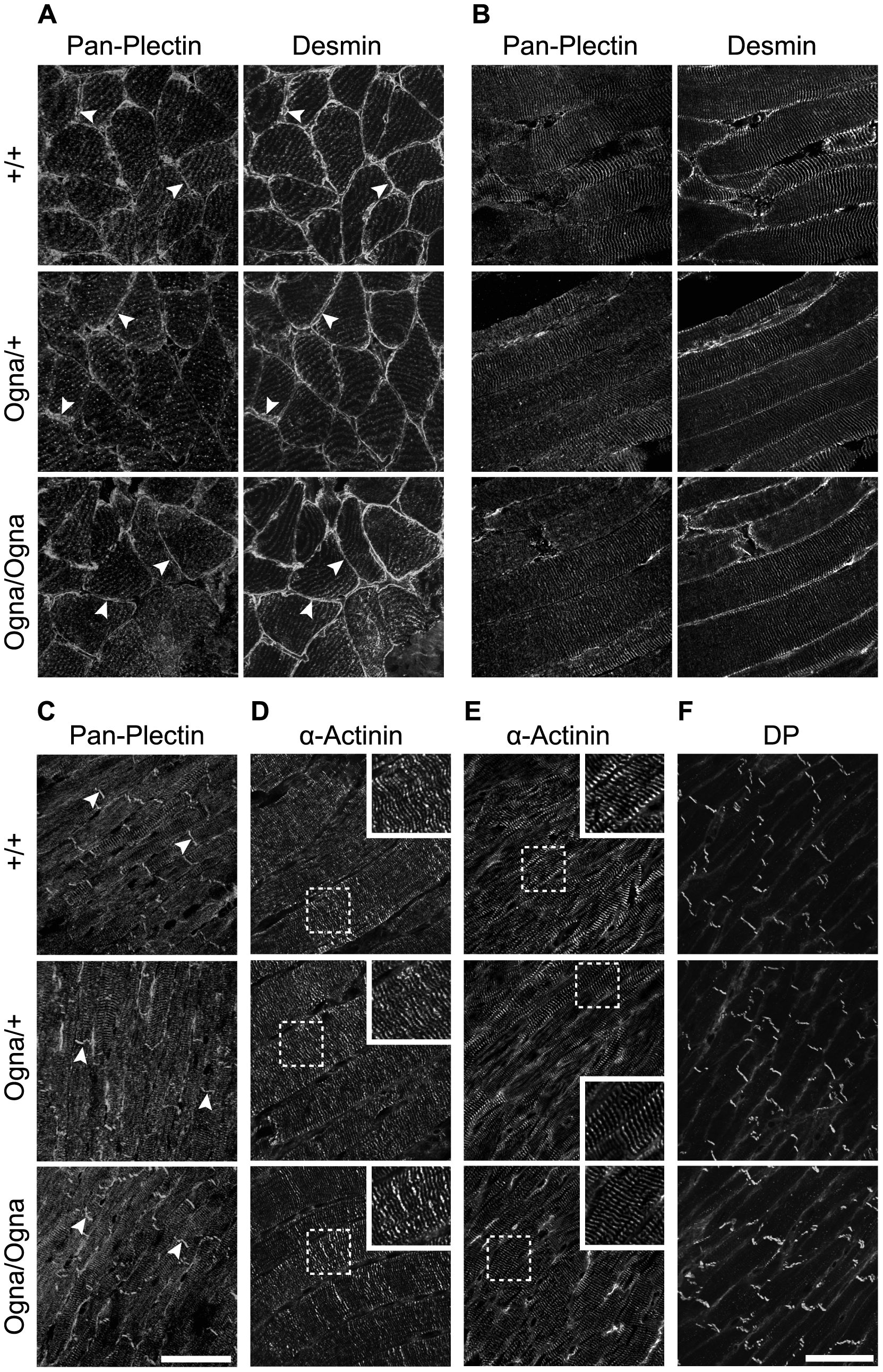 Normal plectin expression and contractile apparatus organization in muscle tissues of Ogna mice.