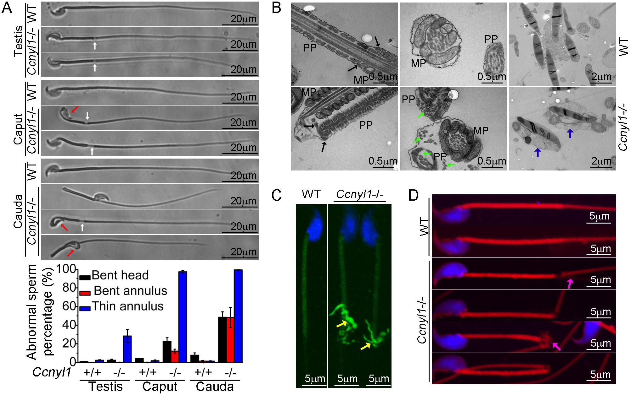 Morphological defects of <i>Ccnyl1</i>-/- spermatozoa.