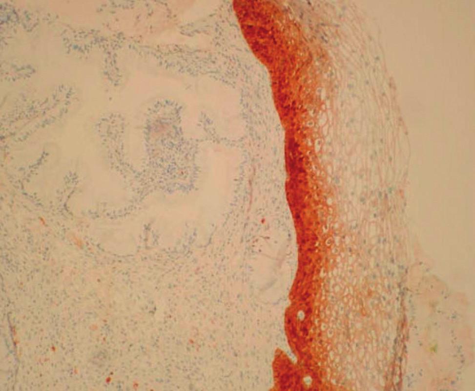 PCIN1 – difuzní pozitivita spodní 1/3 cervikálního epitelu