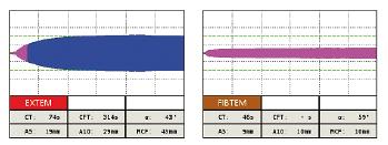 Obr. 1a Tromboelastometrické krivky pred podaním a po podaní antitrombínu pri non-overt DIK
