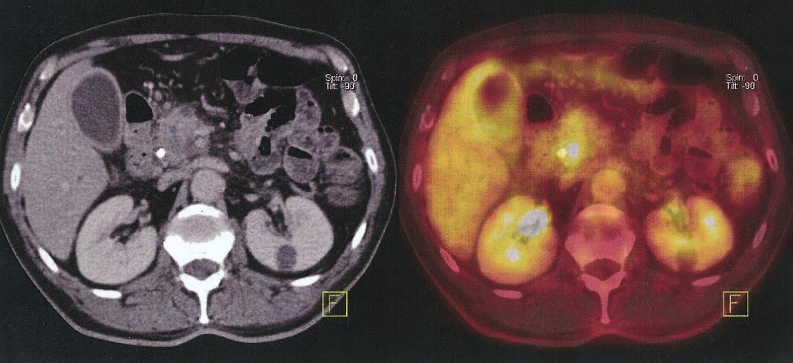 Nemocný s maligním ampulomem. Falešná pozitivita – PET/CT prokazuje metastázu jater, provedena pravostranná duodenopankreatektomie, ložisko v játrech benigní hamartom Fig. 4. Patient with malignant ampuloma. False positive finding – PET/CT identifies liver metastases, performed right sided duodenopancreatectomy, lesion in liver is benign hamartoma
