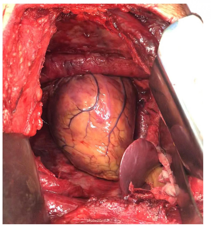 Pohled do levého hemithoraxu po extrapleurální pneumonektomii – kompletně odstraněná levá plíce, parietální i mediastinální pleura, perikard a bránice. Do hrudníku prominuje levý lalok jaterní.<br> Fig. 2: View of the left hemithorax after extrapleural pneumonectomy – completely resected left lung, parietal and mediastinal pleura, the pericardium and the diaphragm. The left lobe of the liver protrudes into the chest.