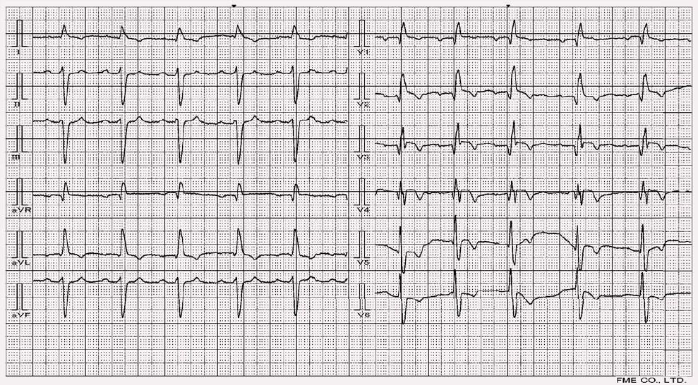 Blok pravého raménka Tawarova, levý přední hemiblok a subakutní infarkt myokardu přední stěny.