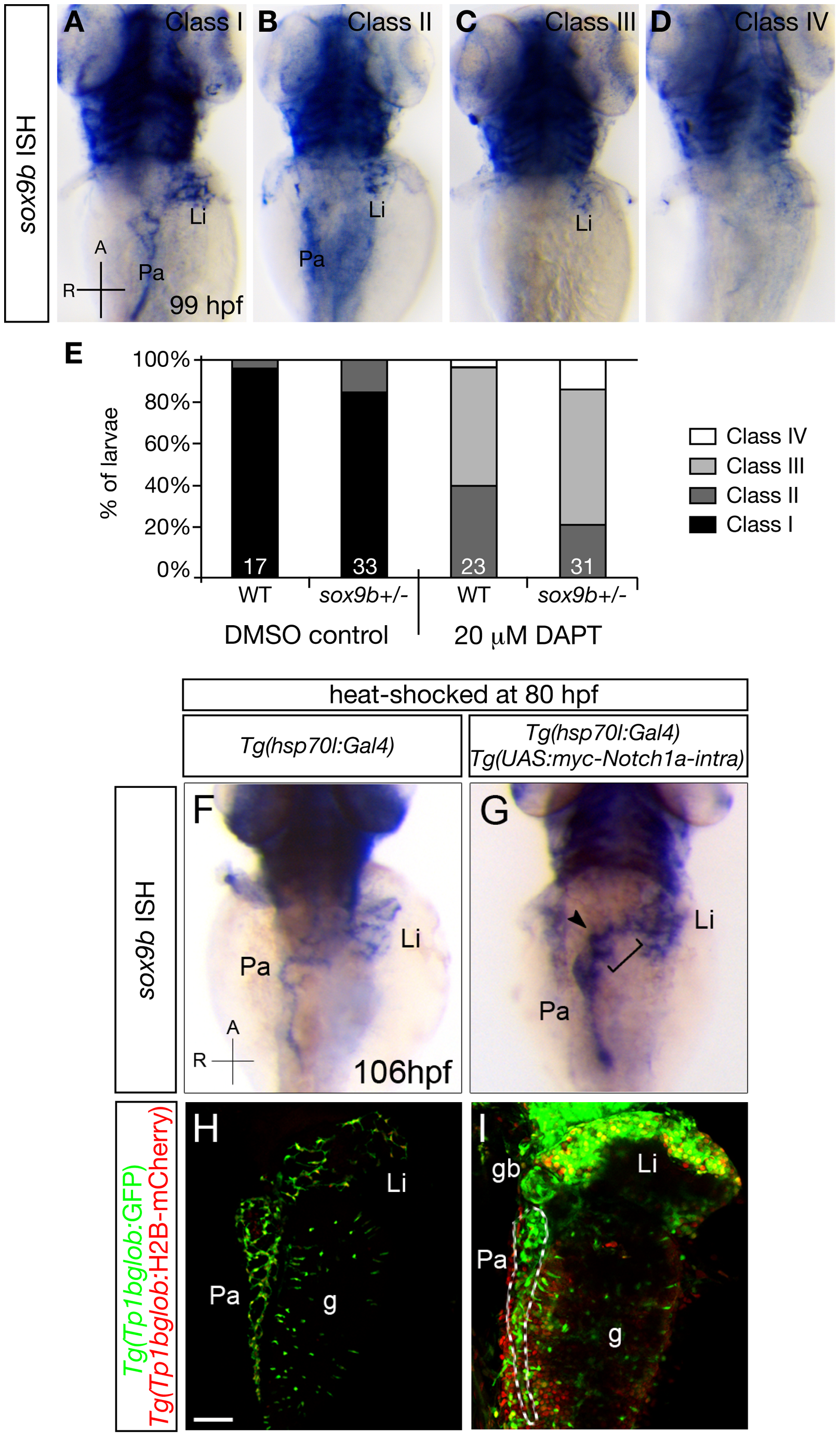 Notch signaling regulates <i>sox9b</i> expression in the intrahepatic and intrapancreatic ducts.