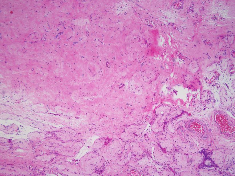 Histologický nález lézie v pravom semenníku potvrdil jazvovitý parenchým testis s atrofickými zmenami v okolitých semenotvorných kanálikoch (zväčšenie 40×; farbenie hematoxylín – eozín) Fig. 2. Histologically, the lesion from the right testis was composed of scarred testicular tissue with atrophic changes in surrounding seminiferous tubules (magnification 40×; hematoxylin – eosin staining)
