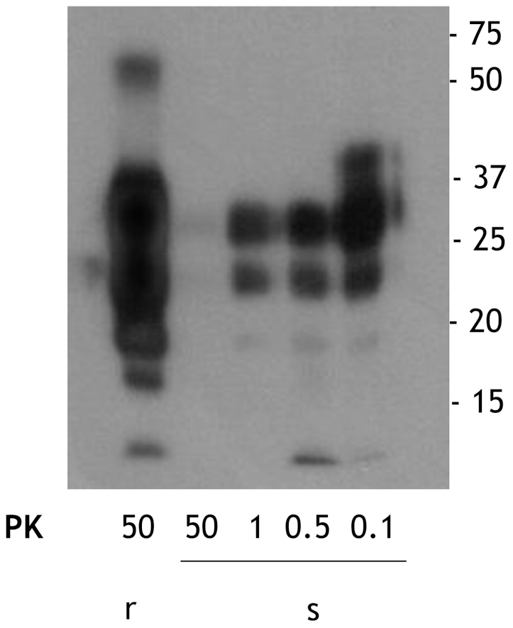 Comparison of the PK resistance of rPrP<sup>Sc</sup> and sPrP<sup>Sc</sup> with varying amounts of PK.
