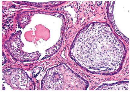 Hnízda dlaždicového epitelu, některá s cystickou přeměnou a eozinofilním materiálem v lumen (barvení HE, původní zvětšení 100x)