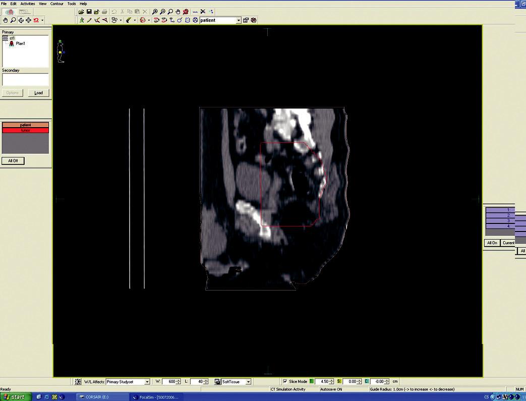 Ozařovací plán – předoperační ozáření karcinomu rekta cT3 NO MO – sagitální rovina