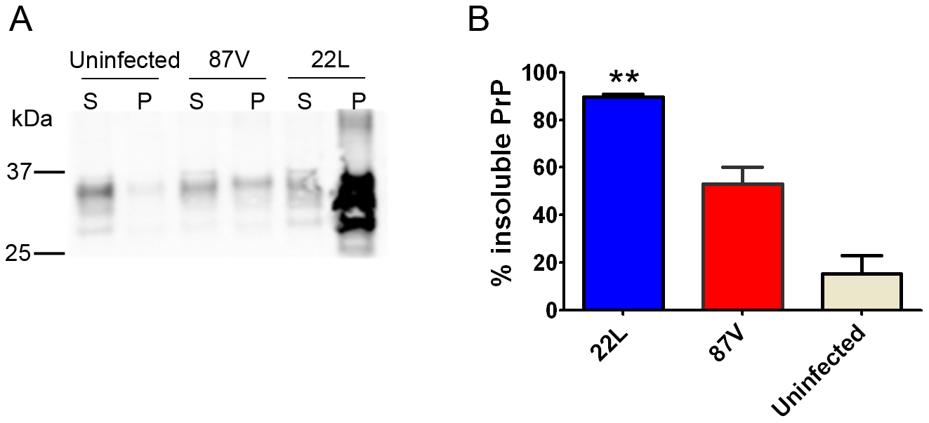 Soluble to insoluble PrP ratio varies depending on the prion strain.