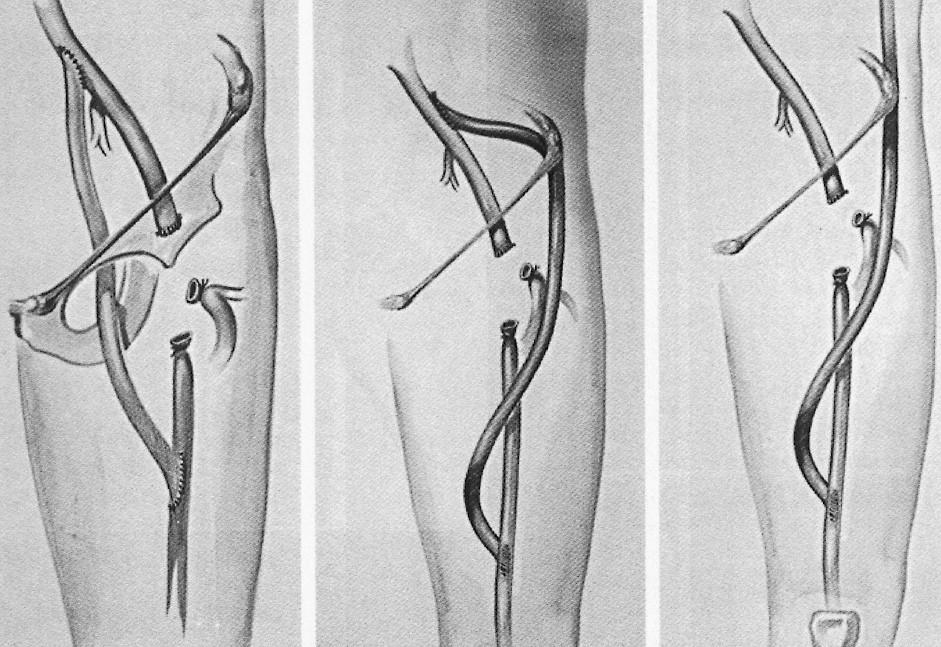 Možnosti extraanatomickej rekonštrukcie v oblasti stehna Pic. 5. Options for extraanatomical reconstructions in the thigh region