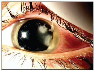 Dvě akutní ulcerózní ložiska na rohovce oka levého