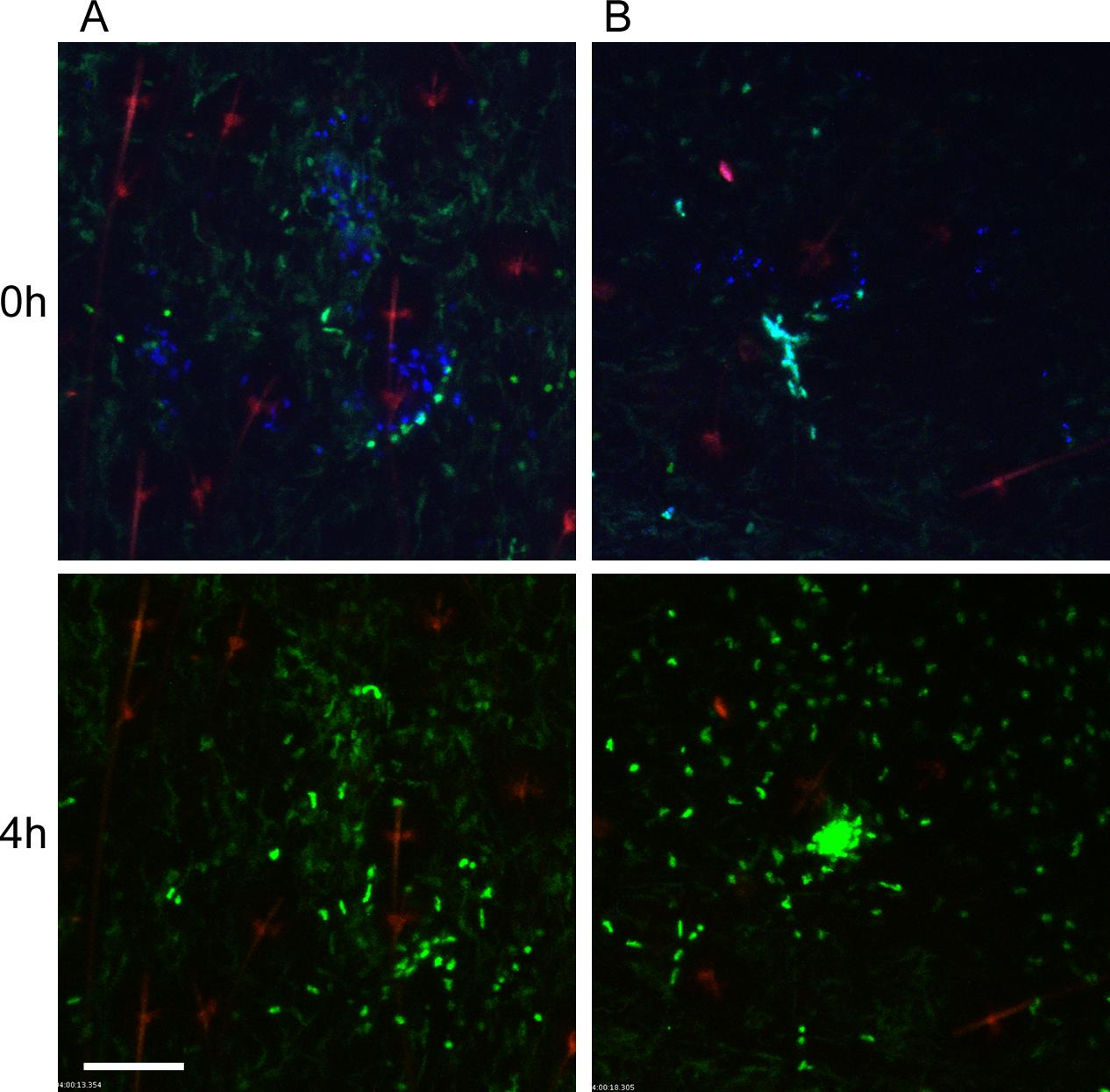 Responses of neutrophils and macrophages to blocked flea bites without transmission of <i>Y</i>. <i>pestis</i>.