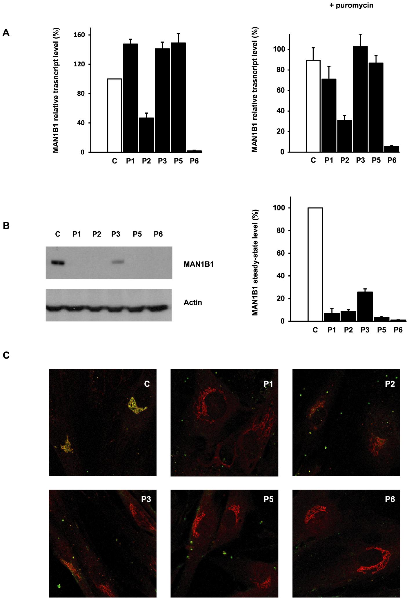 Functional analyses of <i>MAN1B1</i> mutations.