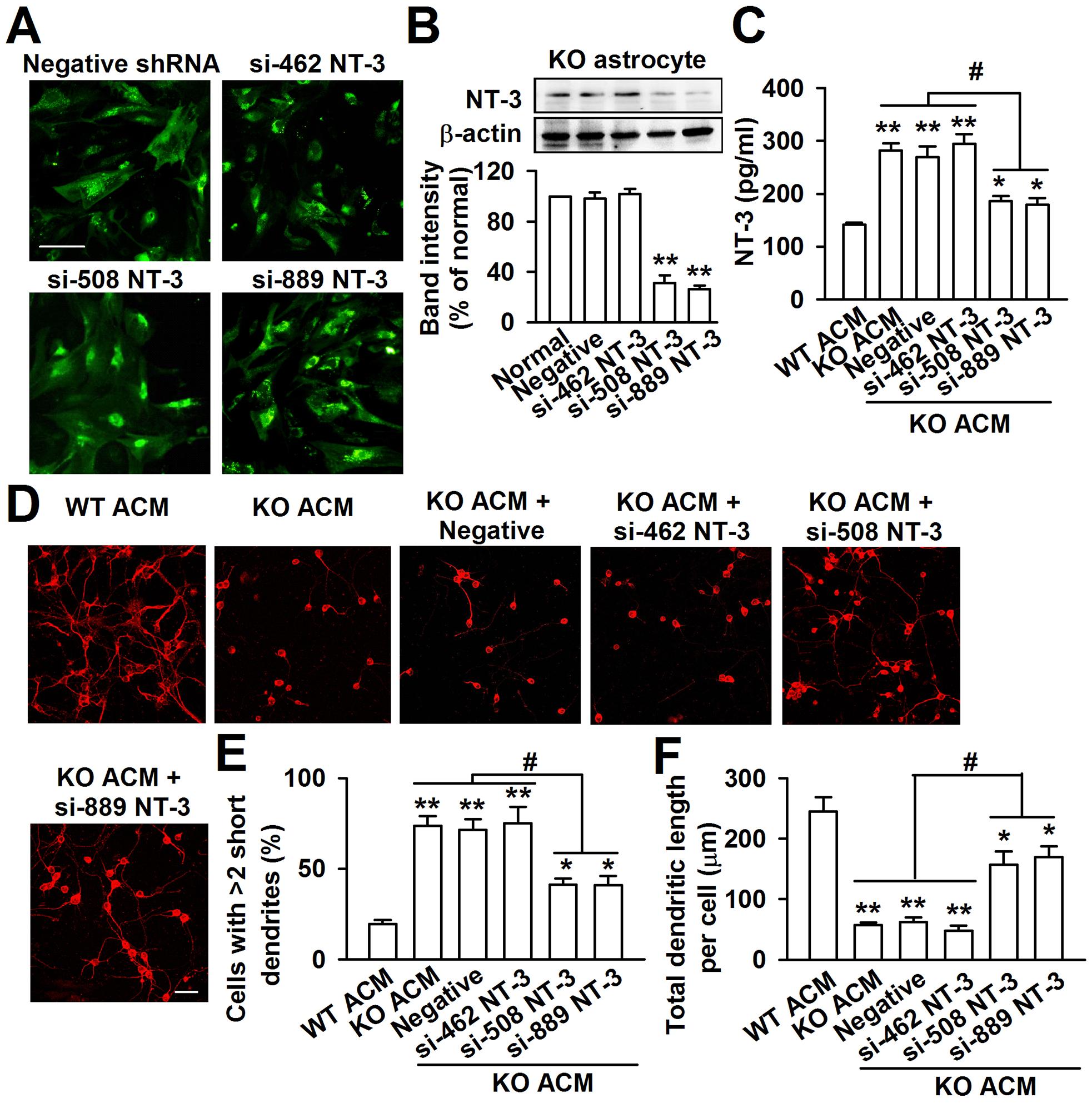 Knockdown of NT-3 in <i>Fmr1</i> KO astrocytes rescued aberrant neuronal morphology.