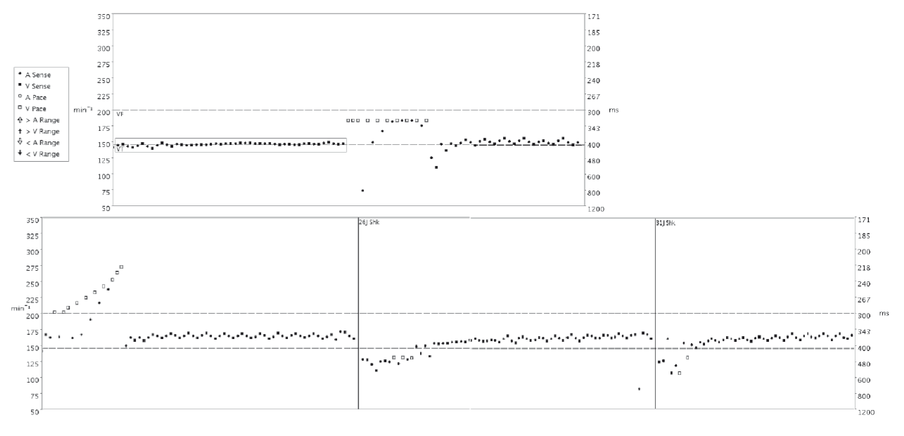 Fig. 2: Interval diagram of stored arrhythmia for case report 1. Each dot is the graphic representation of one cardiac cycle (round for P-P interval and square for R-R interval), e.g. the differences between adjacent P waves or R waves. See the legend provided on the upper left side. The left axis shows the heart rate in min<sup>-1</sup>, the right one shows the interval in ms. Cut-off rate 150 min<sup>-1</sup> for VT and 200 min<sup>-1</sup> for VF zone (dashed lines). Burst and Ramp ATP can be seen, than the unsuccessful shocks. Note the respiratory-affected onset of the tachycardia in the box.