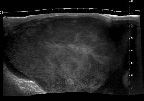 USG skrota. Objemné zvětšení varlete při infiltraci lymfomem. Jedná se o tzv. panoramantické USG-zobrazení, které vzniká při složení více jednotlivých obrazů a využívá se při zobrazovaní orgánů, které jsou větší než zobrazované pole sondy.