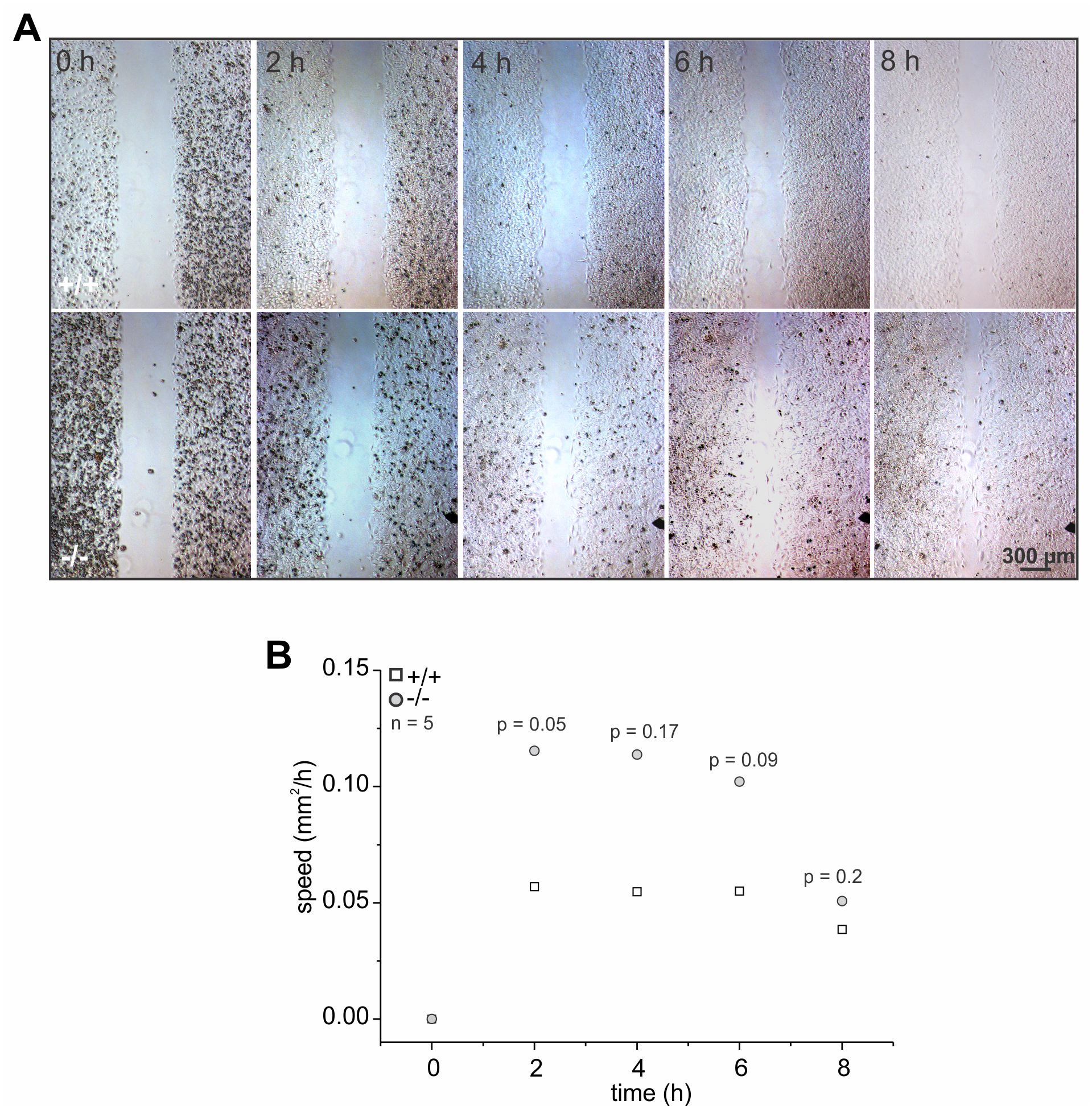 The absence of GBA2 affects cell migration.