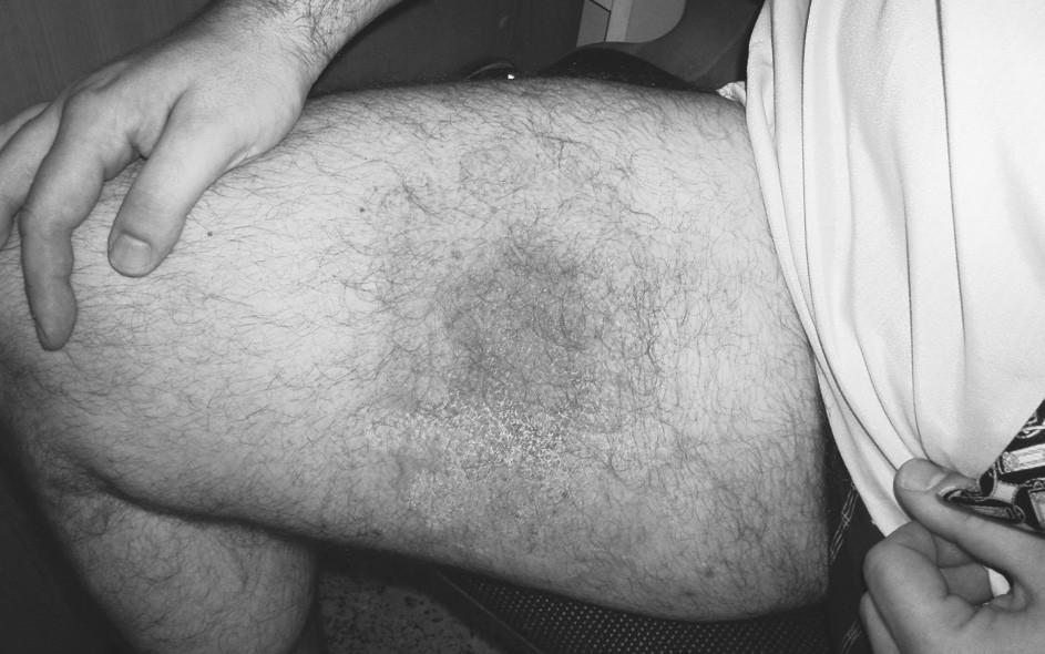 40letý muž před 2 týdny kousnut do uvedeného místa na stehně klíštětem. Před 3 dny se začal od místa vkusu klíštěte šířit erytém. Ten je v centru sytější, výraznější barvy s vezikulami. Po přeléčení Penbene rychlý ústup erytému (obr. 8 zachycuje stav po 4 dnech terapie); Penbene podáváno po dobu 14 dnů. Výskyt v 5. měsíci.