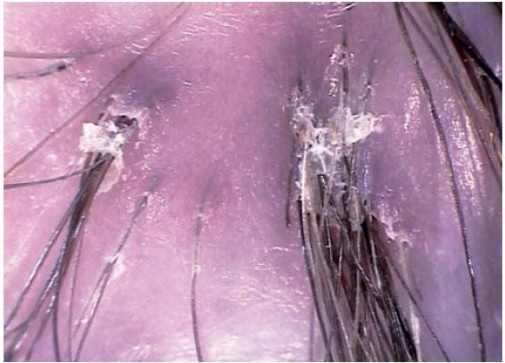 Jizvící alopecie – tufted hairs s šupinami a erytémem kolem folikulárního ústí u folliculitis decalvans