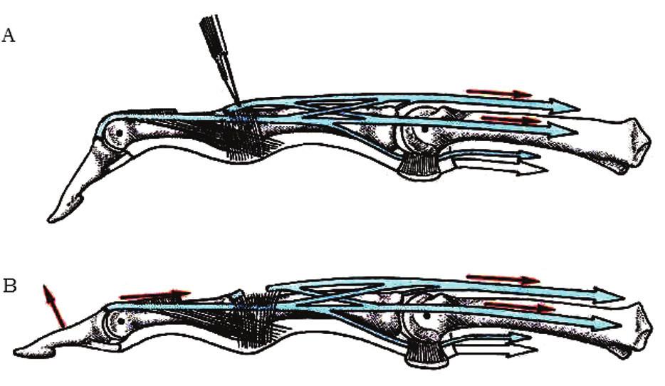Tenotómia centrálneho pruhu extenzorového aparátu a) transcízia centrálneho pruhu, b) proximálna retrakcia extenzorového aparátu [2] Fig. 9: Tenotomy of the central strip of extensor apparatus a) transcision of the central strip, b) proximal retraction of the extensor apparatus [2]