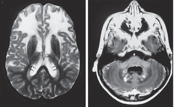 Juvenilná forma Alexandrovej choroby. Obr. 6a) Na T2WI s hyperintenzívnymi zmenami BH frontálne obojstranne, BG sú tmavé a atrofické, viditeľný je tenký periventrikulárny lem nízkej intenzity (šípky). Obr. 6b) Po podaní kontrastu je vidieť enhancement na povrchu cerebela a v nucleus dentatus [100].