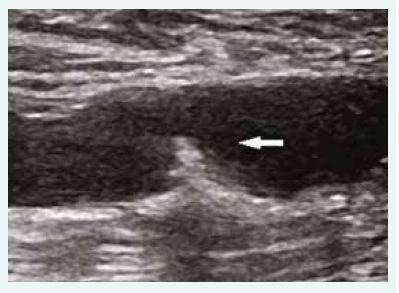 Duplexní ultrasonografie – podélná projekce levé a. femoralis communis; mobilní plát  s velkým embolizačním potenciálem (šipka).