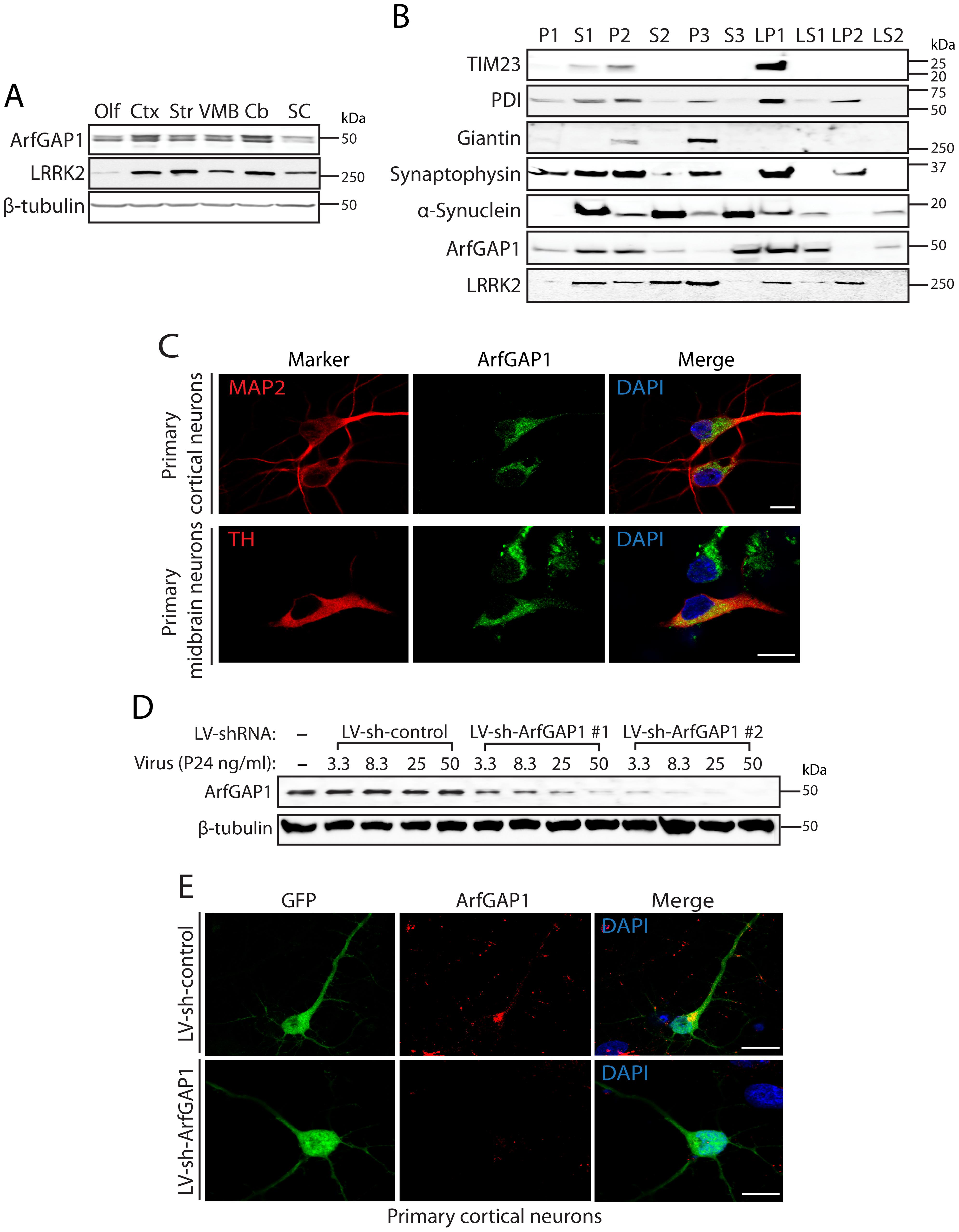 ArfGAP1 is expressed in the mammalian brain.