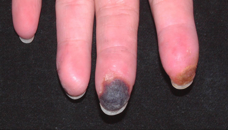 Digitální ulcerace a suchá gangréna u pacienta se systémovou sklerodermií